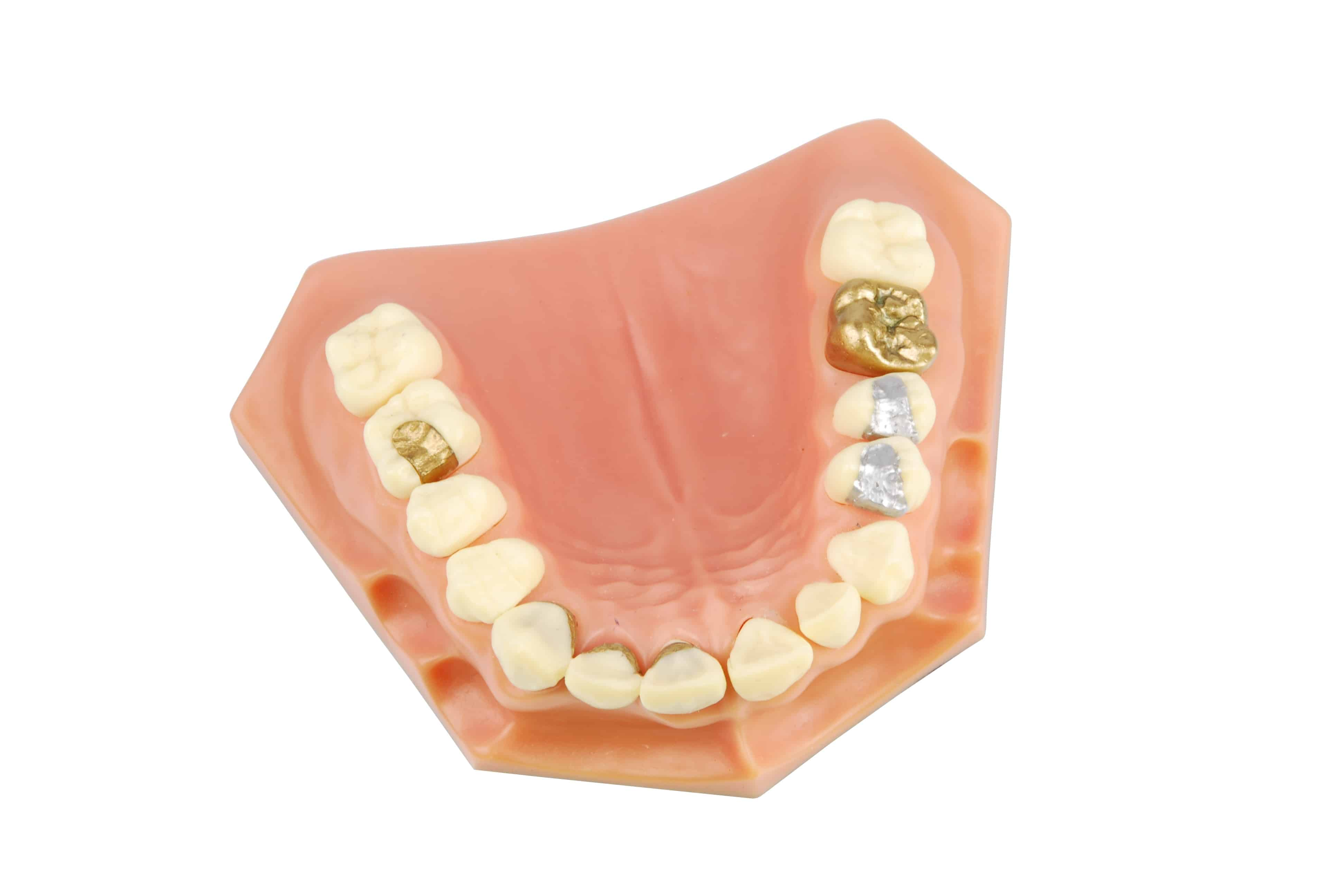 dental model showing different types of treatments (gold crown, porcelain veener, gold inlays, amalgam and composite fillings)