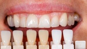 smile, beauty,teeth,