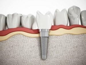 dentalimplants smile teeth dentures