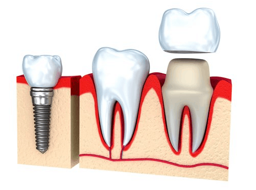 Amazing Benefits Of Getting Dental Crowns
